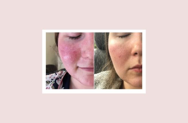 Rosacea behandeling voor en na
